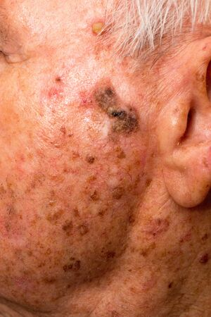 Man with skin cancer on the side of his face
