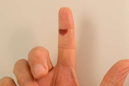 Blood Blister on a man's Index Finger 免版税图像