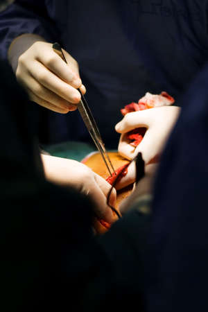 Surgeon's hands at work on the operation of the chest