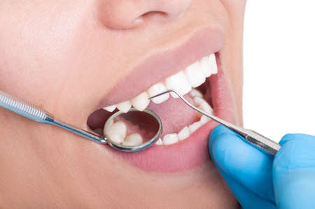 Oral hygienist at work using dentist tools photo