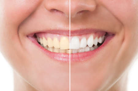 ��smiling: Mujer perfecta sonrisa de antes y despu�s del blanqueamiento. El cuidado dental y el concepto de examen peri�dico