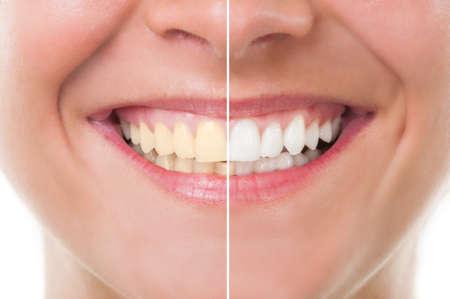 Perfecte vrouw glimlach voor en na het bleken. Tandheelkundige zorg en periodieke examen begrip Stockfoto
