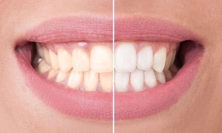 漂白前後の完璧な笑顔。歯科治療とホワイトニングのコンセプト
