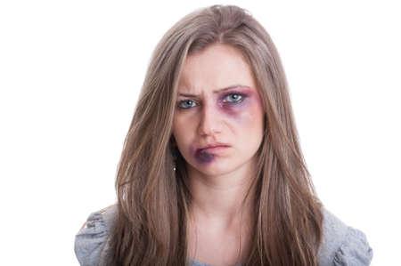 Femme blessée à l'oeil meurtri et la lèvre. La violence domestique contre les femmes notion sur fond blanc Banque d'images