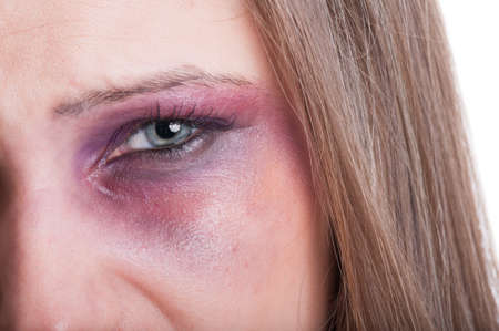 beaten woman: Closeup of a black eye of a beaten woman as a domestic violence victim