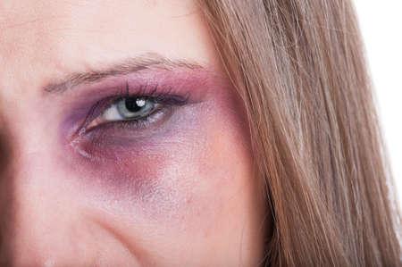 Gros plan d'un oeil au beurre noir d'une femme battue comme une victime de violence domestique
