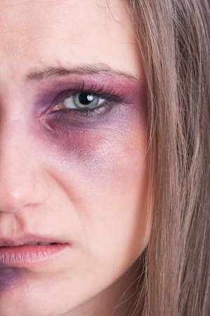 beaten woman: Domestic violence concept with half face of  an injured, beaten and bruised woman victim Stock Photo