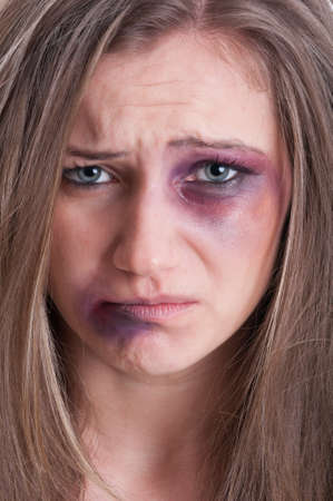 beaten woman: Sad face almost crying of an injured, beaten and bruised woman victim of domestic violence Stock Photo
