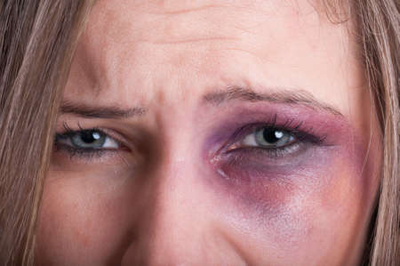 violencia intrafamiliar: Primer plano de los ojos tristes de una mujer víctima de violencia doméstica Foto de archivo