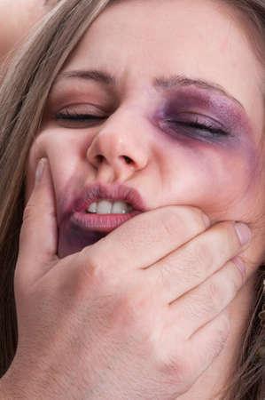 Female facial beatings