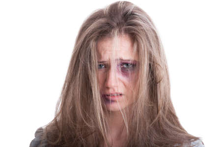 contusion: Portrait of an abused woman victim of domestic violence isolated on white background