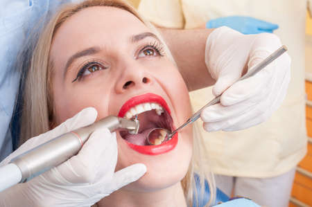 dentition: Dental drilling procedure on perfect woman teeth, smile or denture