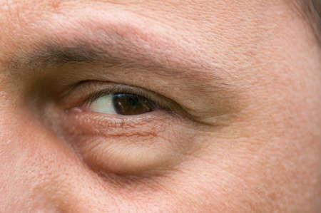 Eyesore, inflammation or bag swelling under eye. Medical problem like conjunctivitis Foto de archivo