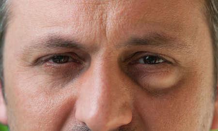 Man of man met één oog met conjunctivitis. Doorn in het oog als medische aandoening Stockfoto
