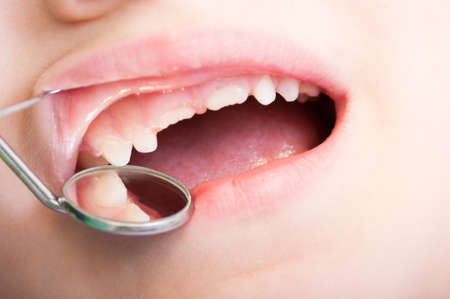 Child teeth examined by dentist using dental tools or instruments Stock Photo