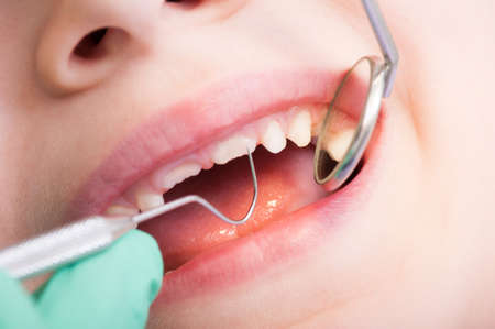 Closeup of kid mouth with mirror at dentist. Boy teeth periodic dental checkup
