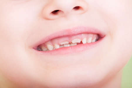 front teeth: Closeup of child mouth with new front teeth growing