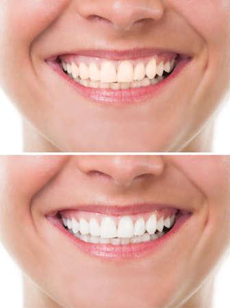 dientes sanos: Antes y después de blanquear o blanqueamiento. Boca de la mujer perfecta con dientes sonrisa Foto de archivo