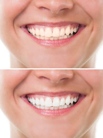 yellow teeth: Before and after bleaching or whitening. Perfect woman mouth with teeth smile