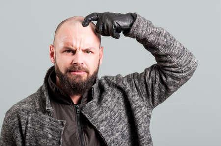 confundido: hombre joven con barba verdadera cabeza y el ceño fruncido como rascarse concepto confusión Foto de archivo