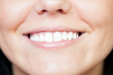 bleaching: Closeup with young white smile after whitening or bleaching