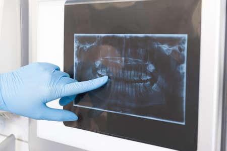 Close-up van de tandarts die röntgenstraal toont aan een patiënt in tandartspraktijk orale radiografie begrip