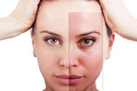 Flawless woman portrait before and after facial correction as skincare and beauty treatment concept against white background 写真素材