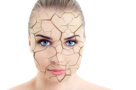 Close-up of woman cracked and damaged face as cosmetic and dehydration effect concept isolated on white background Stock Photo