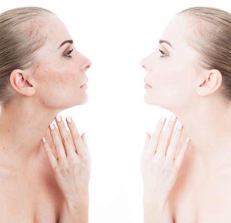 arrugas: retrato comparación de mujeres jóvenes con y sin maquillaje como tratamiento de belleza y el concepto de corrección