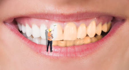 Close-up of perfect smile before and after bleaching as dental whitening concept