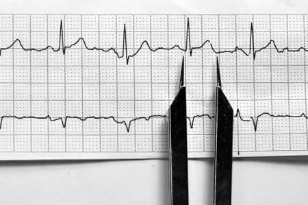 EKG Strip Normal Sinus Rhythm 스톡 콘텐츠