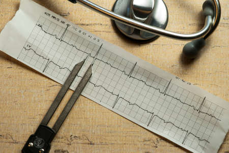 EKG Strip with Calipers and Stethescope