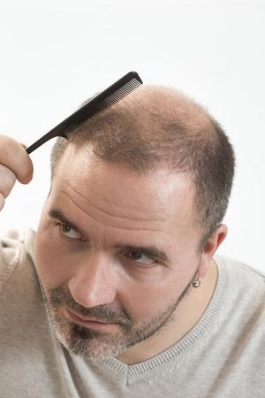 hombres maduros: 40s hombre con una calvicie incipiente que hace el pelo con el fondo Foto de archivo