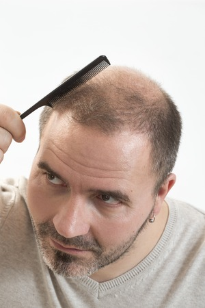 comb the hair: 40s man with an incipient baldness doing hair with background