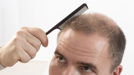 calvicie: 40s hombre con una calvicie incipiente que hace el pelo con el fondo Foto de archivo