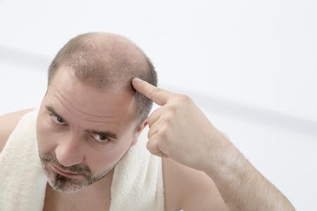 40 代初期脱毛、クローズ アップ、白い背景を持つ人します。