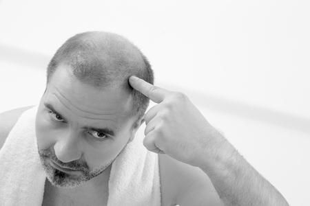 baldness: 40s hombre con una calvicie incipiente, primer plano, fondo blanco