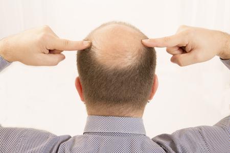 calvo: 40s hombre con una calvicie incipiente, primer plano, fondo blanco