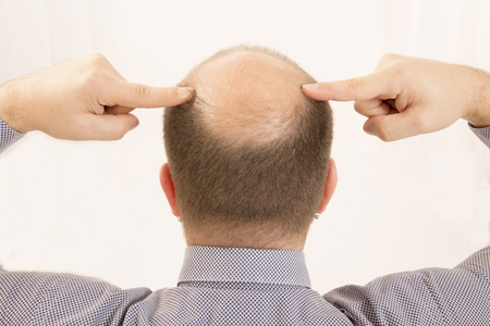 head to head: 40s man with an incipient baldness , close-up, white background