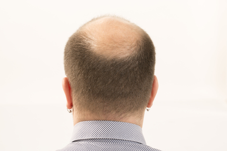 calvicie: 40s man with an incipient baldness , close-up, white background