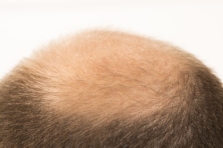 40s man met een beginnende kaalheid, close-up, witte achtergrond Stockfoto