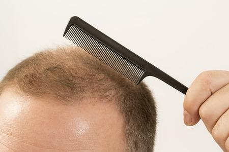baldness: 40s hombre con una calvicie incipiente que hace el pelo con el fondo Foto de archivo