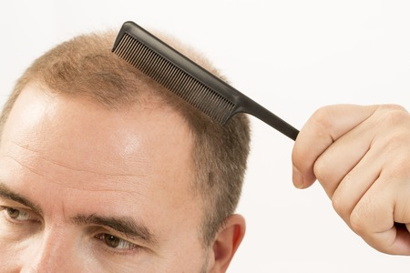 baldness: 40s man with an incipient baldness doing hair with background