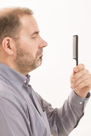 baldness: 40s hombre con una calvicie incipiente, que hace el pelo con un peine Foto de archivo