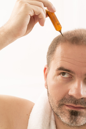 calvicie: 40s hombre con una calvicie incipiente, tratamiento, primer plano, fondo blanco
