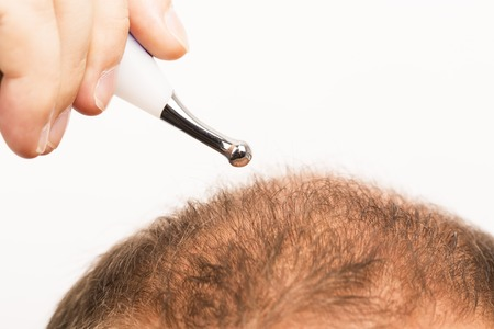 40s man with an incipient baldness , treatment, close-up, white background