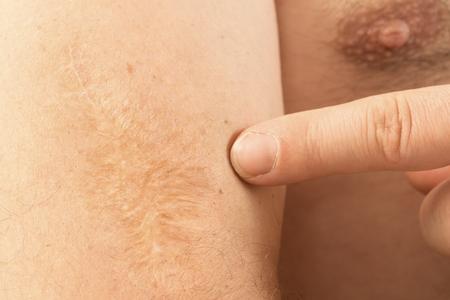 scar: Arm with big scar Close up Man Angioma health medicine
