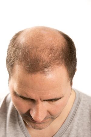 baldness: La alopecia calvicie ca�da del cabello cuidado del cabello de la medicina hombre calvo trasplante de tratamiento