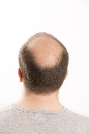 transplantation: Baldness Alopecia man hair loss haircare medicine bald treatment transplantation Stock Photo