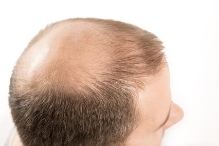 Kaalheid Alopecia man haaruitval haarverzorging geneeskunde kale behandeling transplantatie Stockfoto